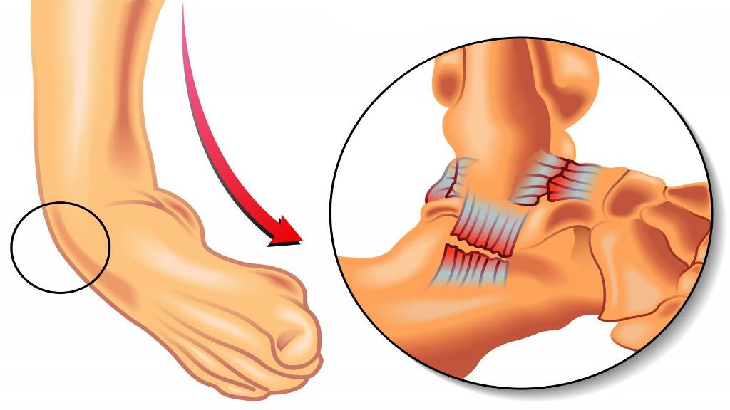 Guta fotografie pe tratamentul amprentelor de la picioare