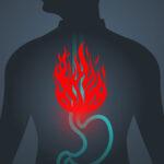 Produse alimentare de evitat cand ai neplaceri din cauza refluxului gastroesofagian
